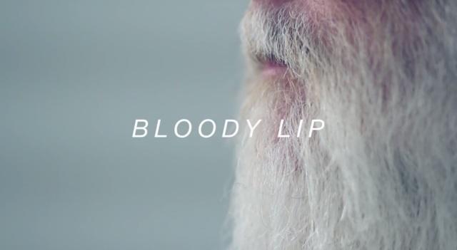Bloody Lip1